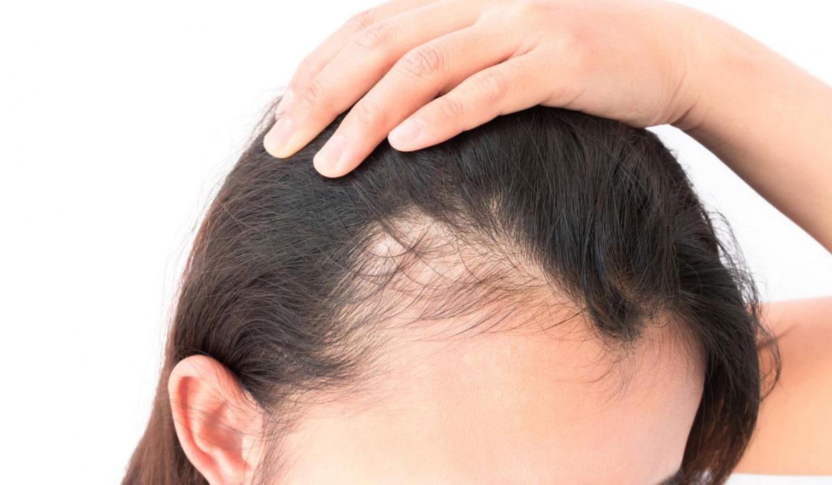 بالصور علاج تساقط الشعر , وصفات وطرق لعلاج تساقط وتقسف الشعر 723