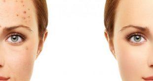 ازالة حبوب الوجه , نضارة البشرة وجمالها