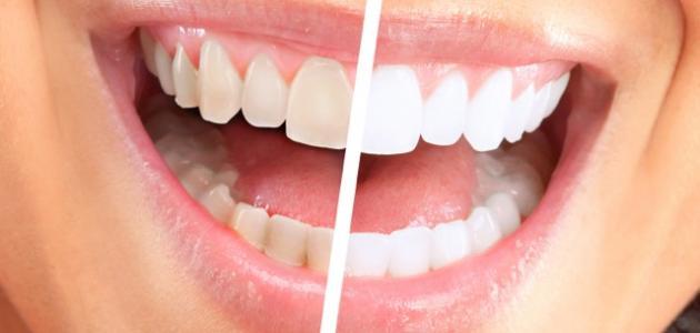 صورة نصائح بعد تنظيف الاسنان من الجير , افضل الوسائل للحفاظ على الاسنان بعد الجير