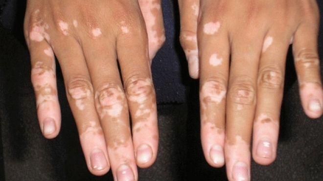 بالصور علاج مرض البهاق بالاعشاب , طرق علاجية للتخلص من البهاق بالوصفات الطبيعية 8488 1