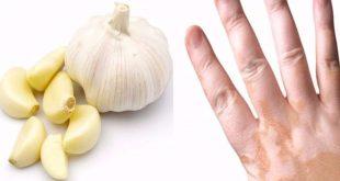 علاج مرض البهاق بالاعشاب , طرق علاجية للتخلص من البهاق بالوصفات الطبيعية