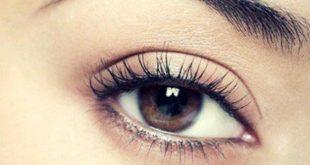 علاج السواد حول العين , كيفية اخفاء السواد حول منطقة العينين