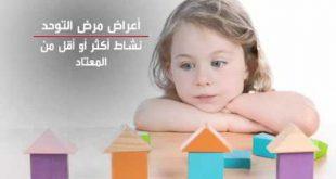 اعراض مرض التوحد للاطفال , كيف تتعرف على اعراض التوحد للاطفال