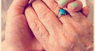 بالصور علاج طبيعي للاكزيما اليدين , اساليب مختلفة للعلاج الطبيعي لمرض اكزيما اليد 8852 3 310x165