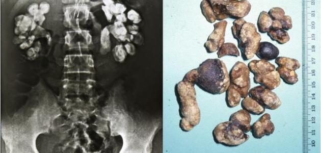 صور علاج التهاب الحالب , اساليب طبية لمعالجة امراض الحالب