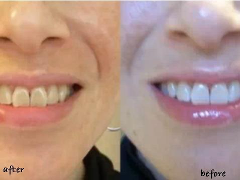 صور تجربتي مع لصقات كرست , احظر عند استخدام لصقات لتبيض الاسنان