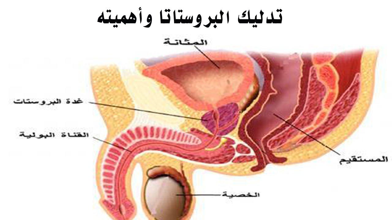 صور علاج البروستاتا عند الرجال , التهابات وامراض البروستاتا واساليب علاجها