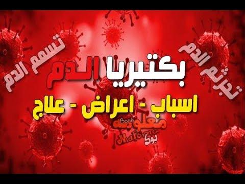 صورة اسباب تلوث الدم , تعرف على الاشياء التي تلوث الدم