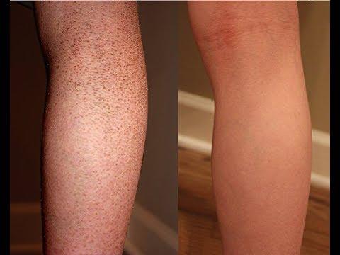 صورة علاج جلد الوزة , افضل الطرق لعلاج التقرن الشعري