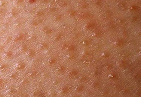 صور علاج جلد الوزة , افضل الطرق لعلاج التقرن الشعري