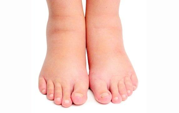 صورة اعراض الزلال للحامل , زلال الحمل امر خطير