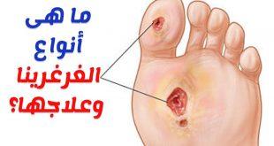 صورة اخطر انواع الغرغرينا , لمن تحدث الغرغرينا