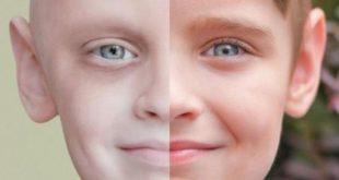 صور كيف اعرف اني مصاب بالسرطان , معرفة اعراض مرضى السرطان