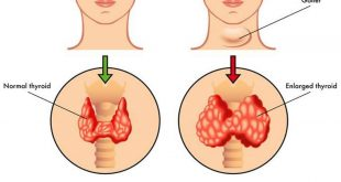 صور علاج نشاط الغدة الدرقية , الطرق المستخدمة لعلاج الغدة في حالة النشاط المفرط