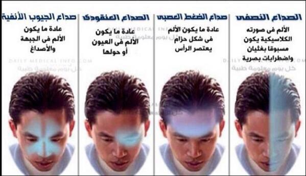 صورة صداع خلف الراس من الجهه اليسرى , اسباب صداع الراس الايسر