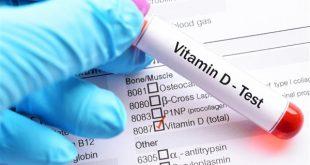 نقص فيتامين د , تعرف علي اسباب و اعراض نقص فيتامين د في الجسم
