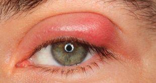 صورة علاج ذبابة العين بالعسل , تعرف علي اسباب و اعراض ذبابه العين