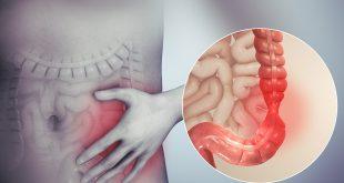 اعراض القولون العصبي وكيفيه علاجه بالأعشاب , تعرف علي كيفيه علاج القولون بالمنزل