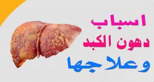 دهون الكبد وعلاجها